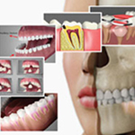 Dental Patient Education Videos
